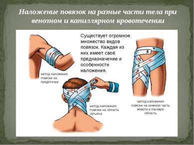 Наложение повязок на разные части тела при венозном и капиллярном кровотечени...