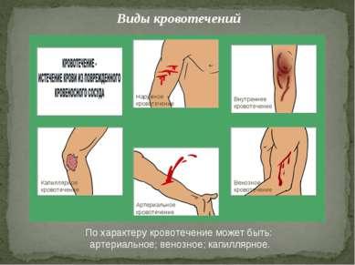 Виды кровотечений Артериальное кровотечение Венозное кровотечение Внутреннее ...