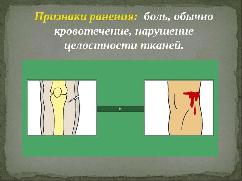 Признаки ранения: боль, обычно кровотечение, нарушение целостности тканей.