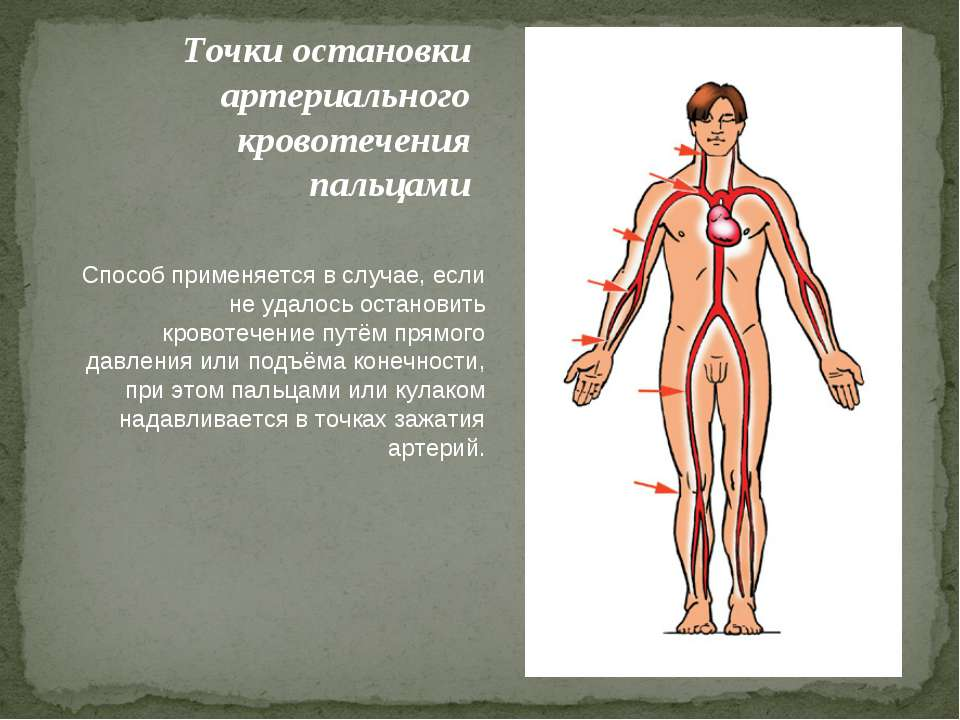 Точки остановки артериального кровотечения пальцами Способ применяется в случ...