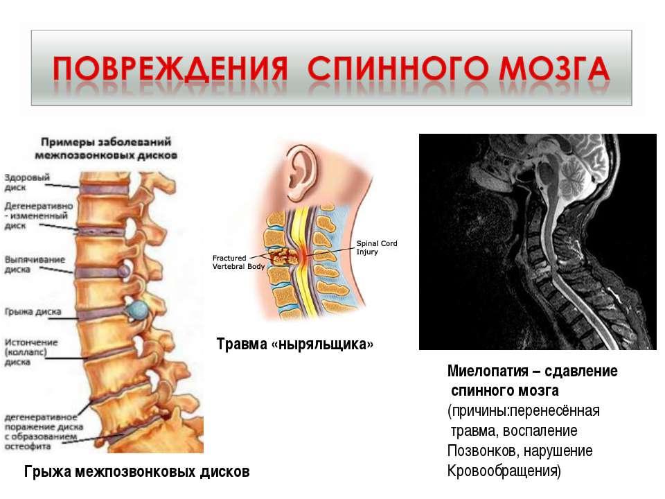 Травма «ныряльщика» Миелопатия – сдавление спинного мозга (причины:перенесённ...