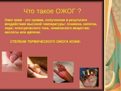 Что такое ОЖОГ ? Ожог кожи - это травма, полученная в результате воздействия ...
