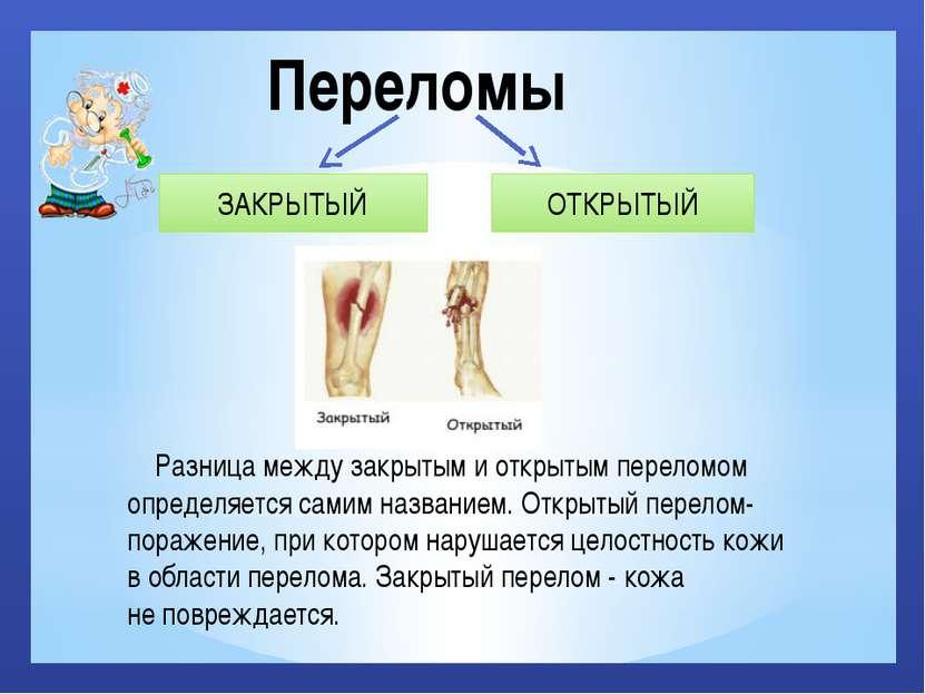 Переломы ЗАКРЫТЫЙ ОТКРЫТЫЙ Разница между закрытым и открытым переломом опреде...