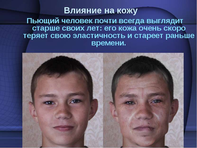 Влияние на кожу Пьющий человек почти всегда выглядит старше своих лет: его ко...