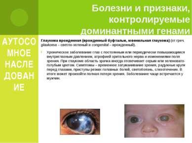 АУТОСОМНОЕ НАСЛЕДОВАНИЕ Глаукома врожденная (врожденный буфтальм, ювенильная ...