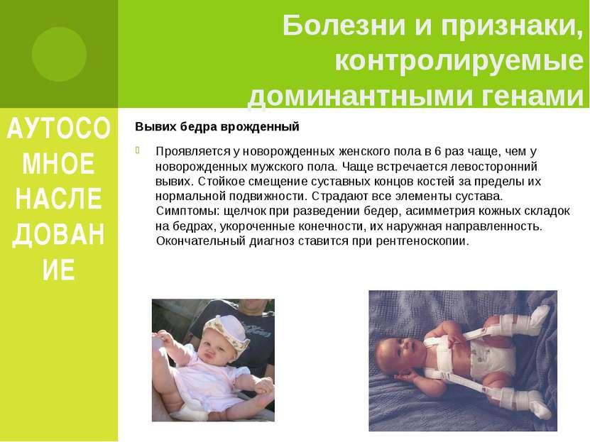 АУТОСОМНОЕ НАСЛЕДОВАНИЕ Вывих бедра врожденный Проявляется у новорожденных же...