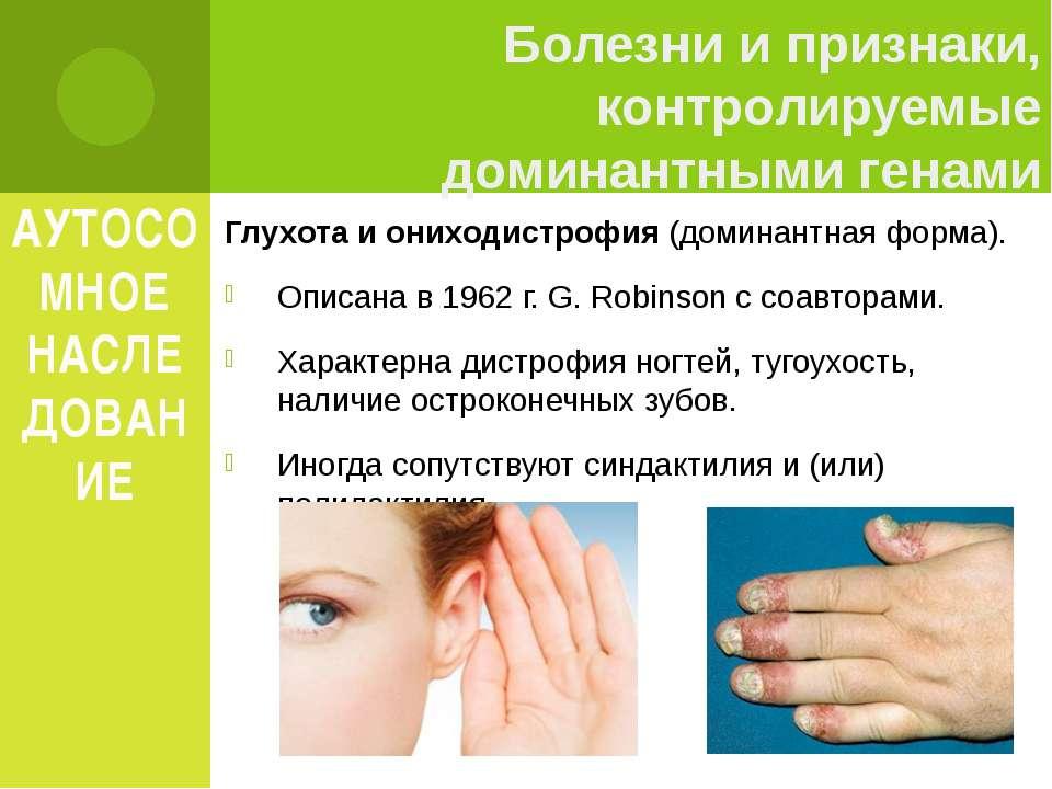 АУТОСОМНОЕ НАСЛЕДОВАНИЕ Глухота и ониходистрофия (доминантная форма). Описана...
