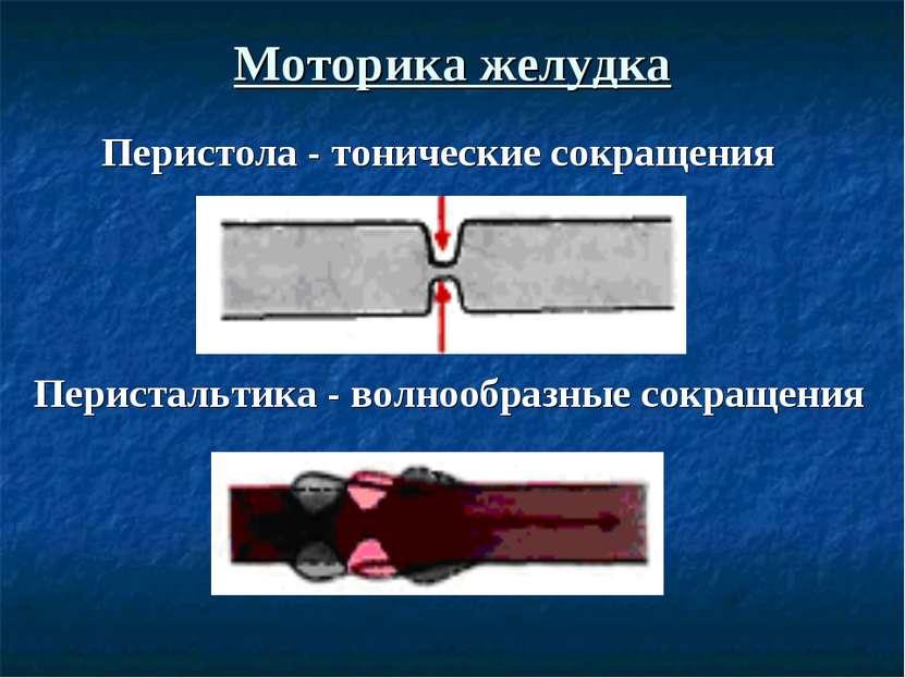 Моторика желудка Перистальтика - волнообразные сокращения Перистола - тоничес...