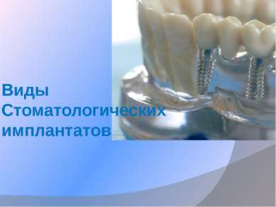 Виды Стоматологических имплантатов