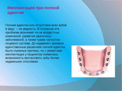 Имплантация при полной адентии Полная адентия или отсутствие всех зубов в ряд...