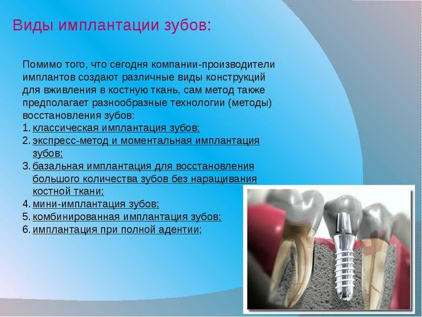Помимо того, что сегодня компании-производители имплантов создают различные в...