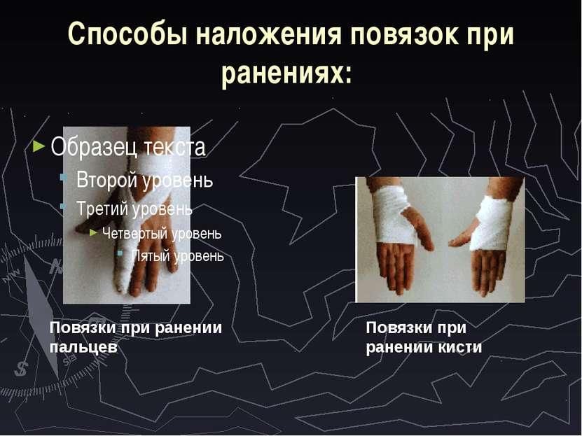 Способы наложения повязок при ранениях: Повязки при ранении пальцев Повязки п...