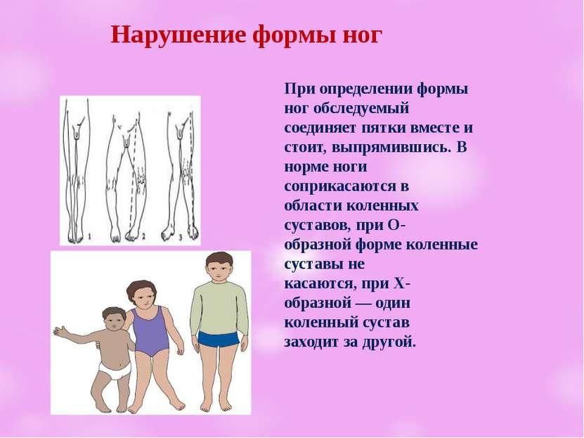 Нарушение формы ног При определении формы ног обследуемый соединяет пятки вме...