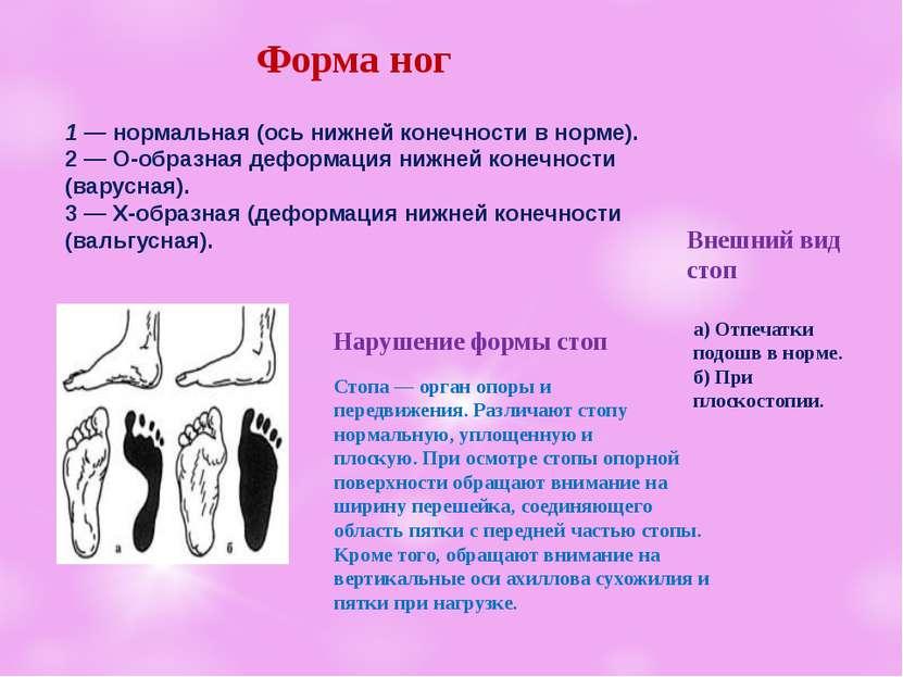 Форма ног 1 — нормальная (ось нижней конечностив норме). 2 —О-образнаядефо...