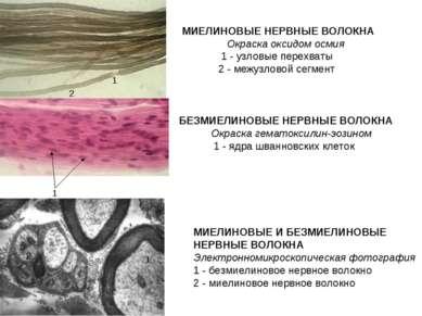 МИЕЛИНОВЫЕ НЕРВНЫЕ ВОЛОКНА  Окраска оксидом осмия 1 - узловые перехваты ...