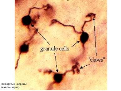 Зернистые нейроны (клетки-зерна)