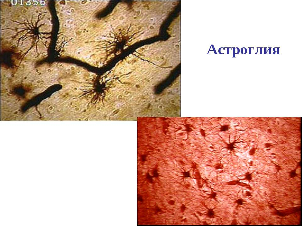 Астроглия