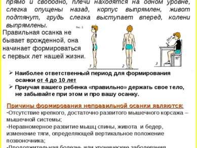 Осанка – это привычное положение тела человека. Она считается правильной, есл...