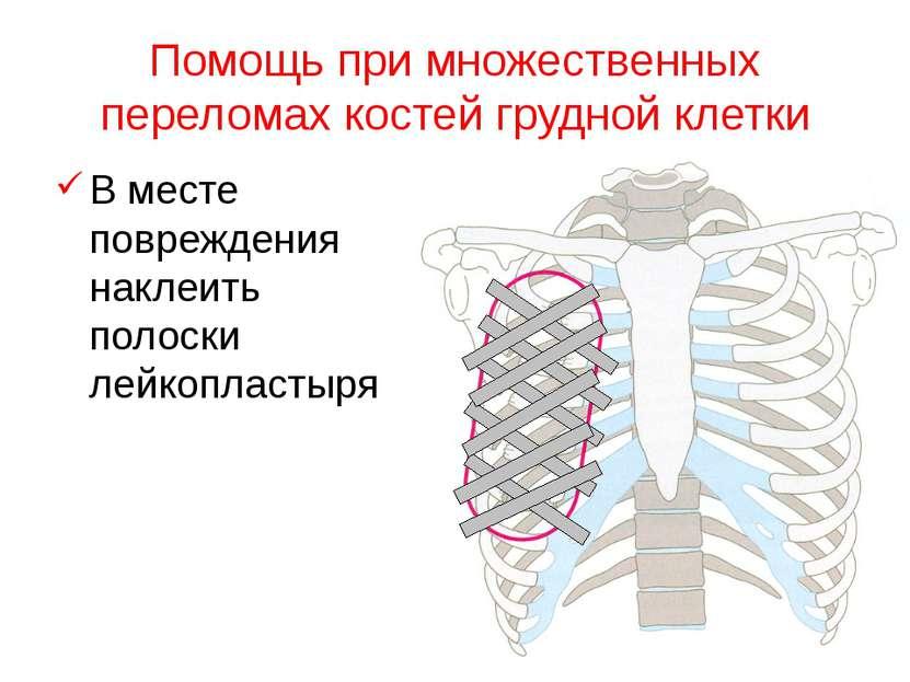 Помощь при множественных переломах костей грудной клетки В месте повреждения ...