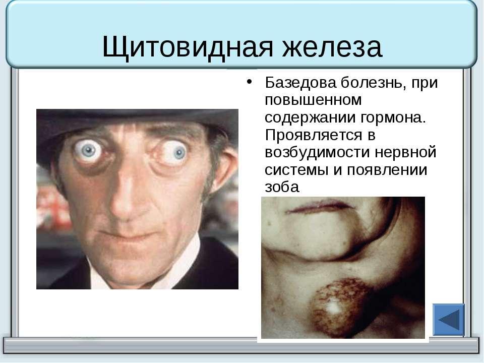 Щитовидная железа Базедова болезнь, при повышенном содержании гормона. Проявл...