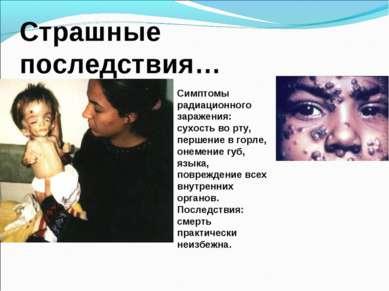 Страшные последствия… Симптомы радиационного заражения: сухость во рту, перше...