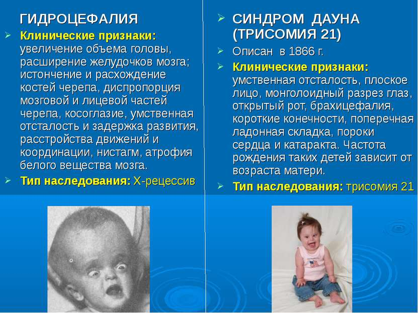 ГИДРОЦЕФАЛИЯ Клинические признаки: увеличение объема головы, расширение желуд...