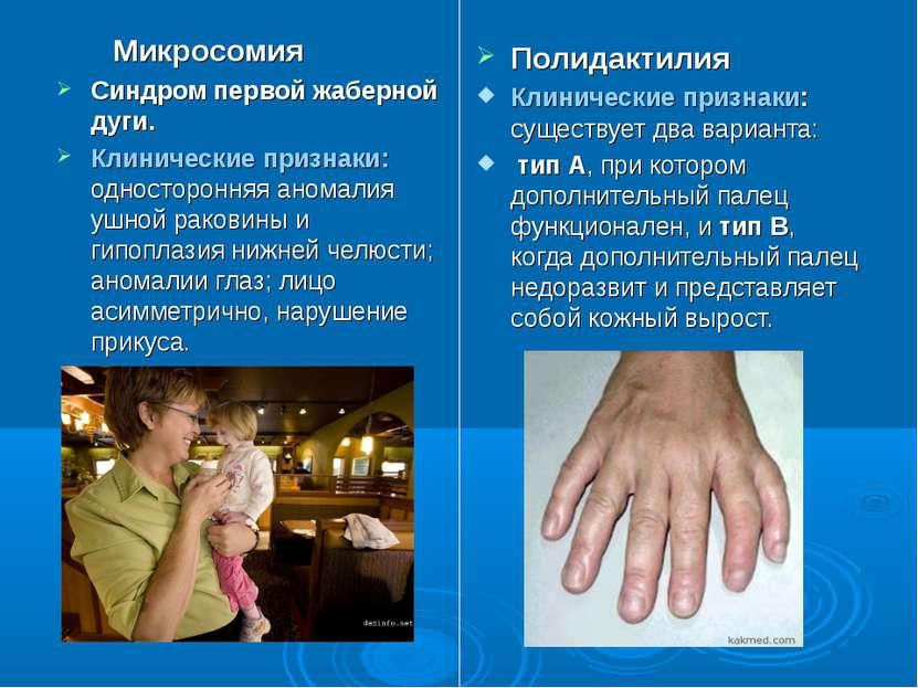 Микросомия Синдром первой жаберной дуги. Клинические признаки: односторонняя ...