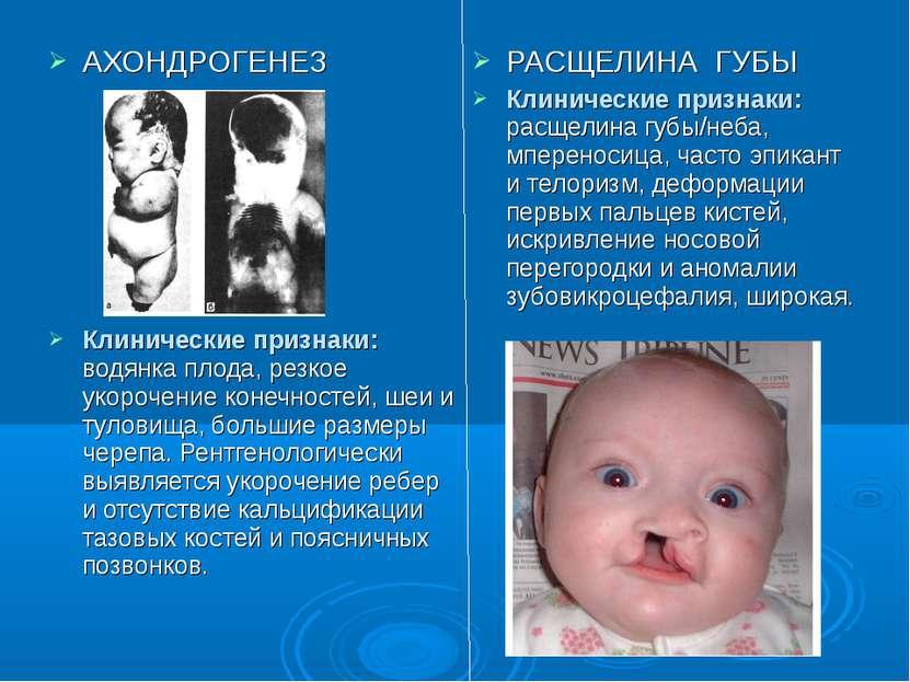 РАСЩЕЛИНА ГУБЫ Клинические признаки: расщелина губы/неба, мпереносица, часто ...