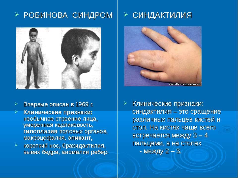 СИНДАКТИЛИЯ Клинические признаки: синдактилия – это сращение различных пальце...