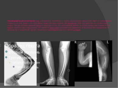 Несоверше нный остеогене з (лат.osteogenesis imperfecta)— группа генетическ...