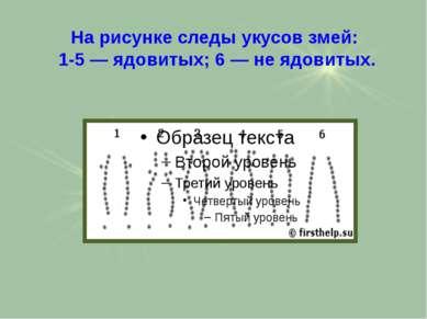 На рисунке следы укусов змей: 1-5 — ядовитых; 6 — не ядовитых.