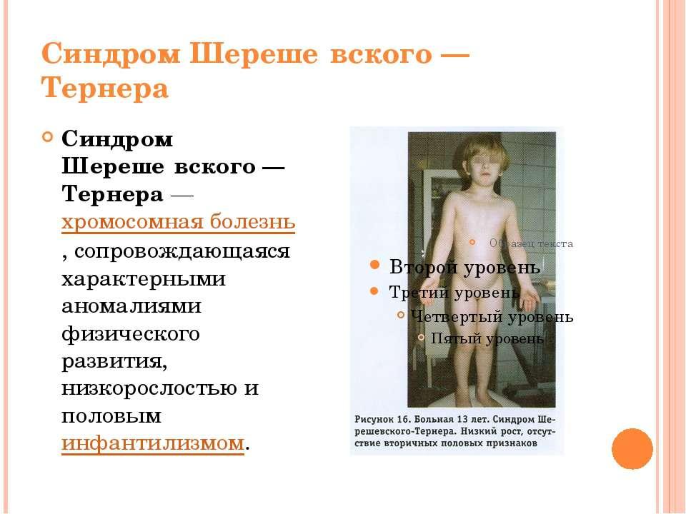 Синдром Шереше вского— Тернера Синдром Шереше вского— Тернера— хромосомная...