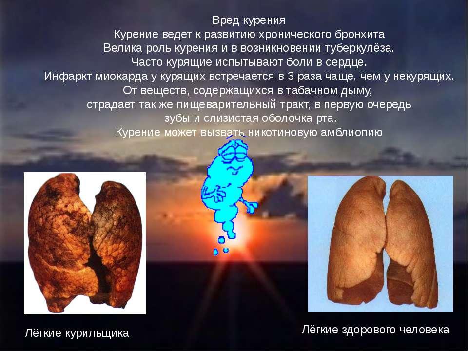 Вред курения Курение ведет к развитию хронического бронхита Велика роль курен...
