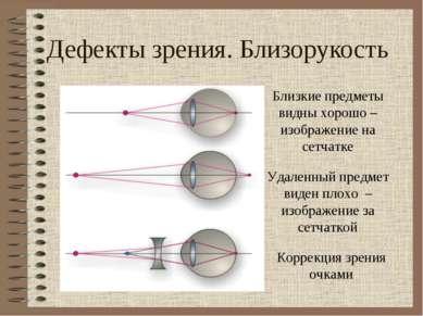 Дефекты зрения. Близорукость Близкие предметы видны хорошо – изображение на с...