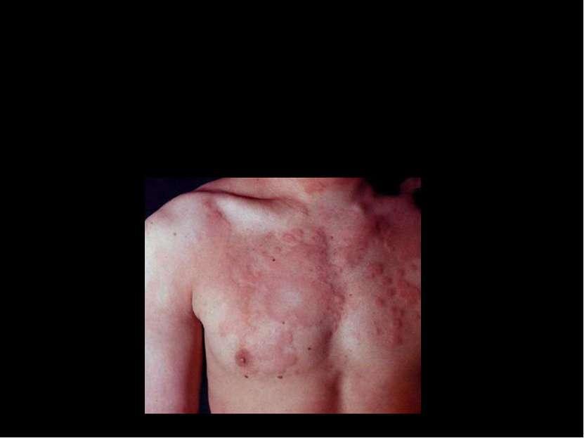 Крапивница. Это появление на коже волдырей разного размера, похожих на высыпа...