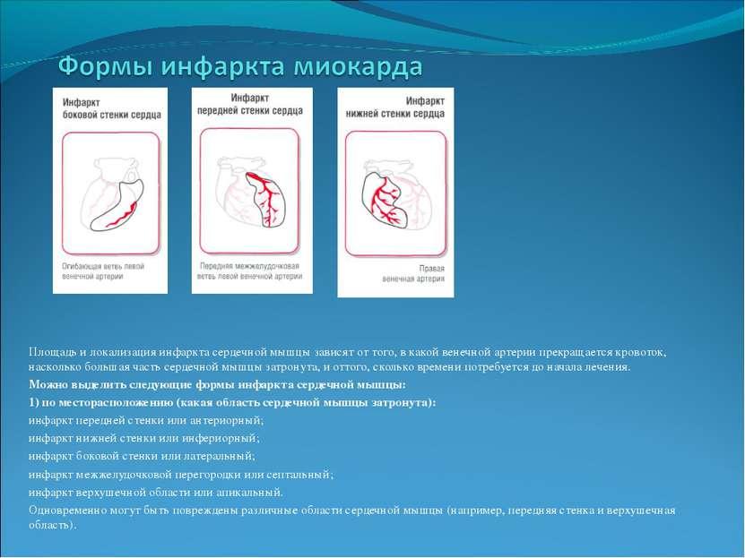 Площадь и локализация инфаркта сердечной мышцы зависят от того, в какой венеч...