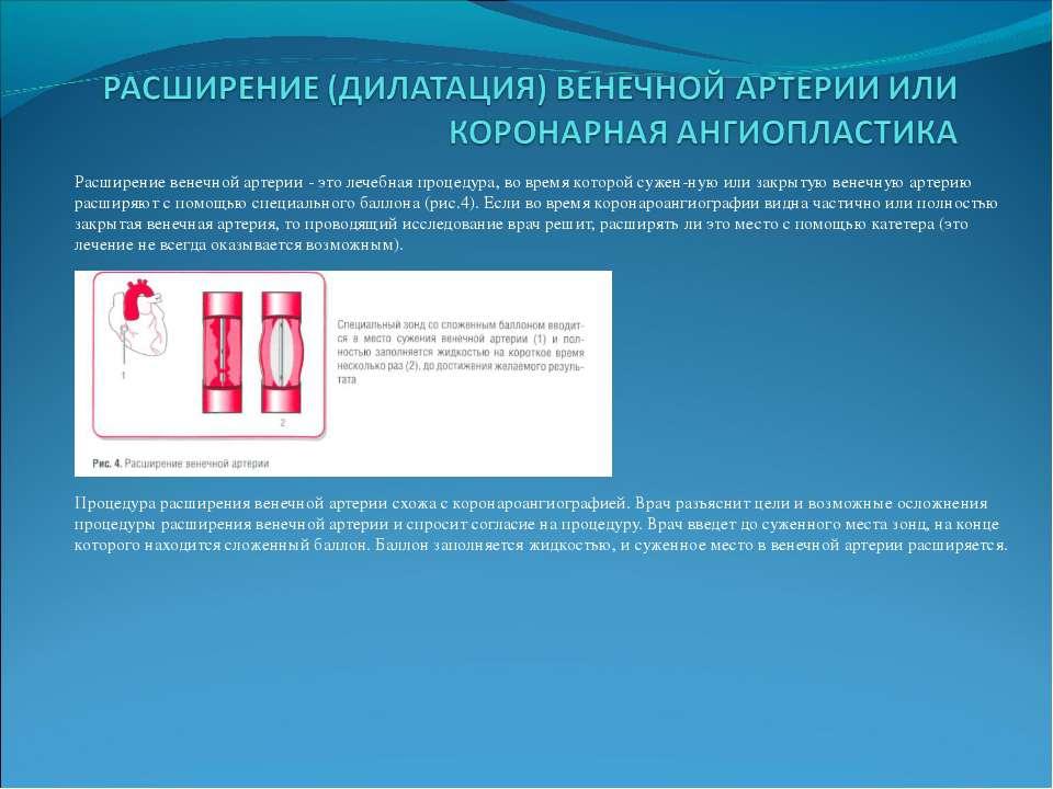 Расширение венечной артерии - это лечебная процедура, во время которой сужен ...