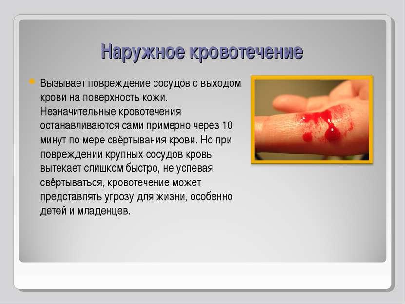 Наружное кровотечение Вызывает повреждение сосудов с выходом крови на поверхн...