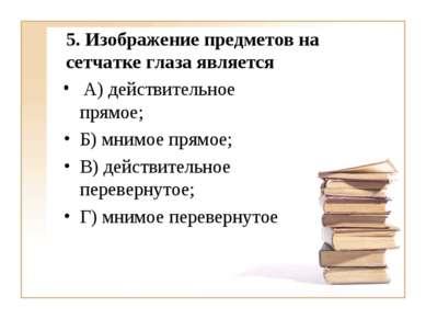 5. Изображение предметов на сетчатке глаза является А) действительное прямое;...