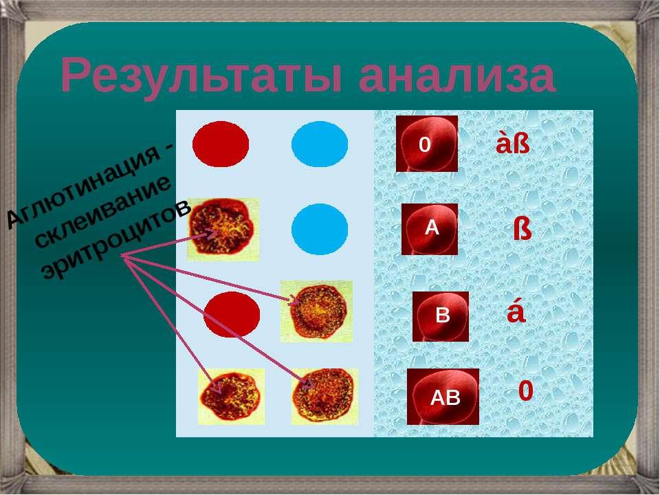 á àß ß 0 Результаты анализа Аглютинация - склеивание эритроцитов В 0 А АВ