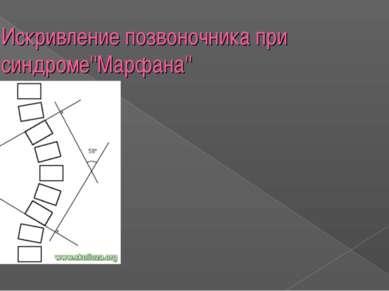 Искривление позвоночника при синдроме''Марфана''