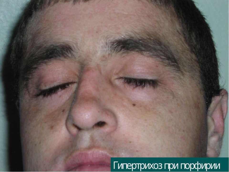 Гипертрихоз при порфирии