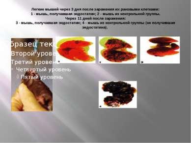 Легкие мышей через 3 дня после заражения их раковыми клетками: 1 - мышь, полу...