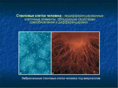 Стволовые клетки человека - недифференцированные клеточные элементы, обладающ...