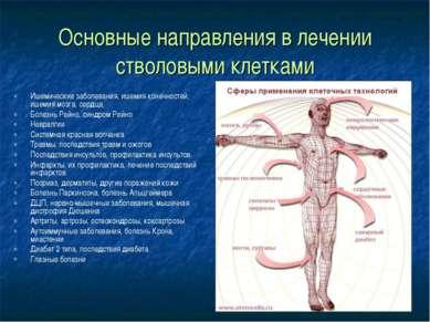 Основные направления в лечении стволовыми клетками Ишемические заболевания, и...
