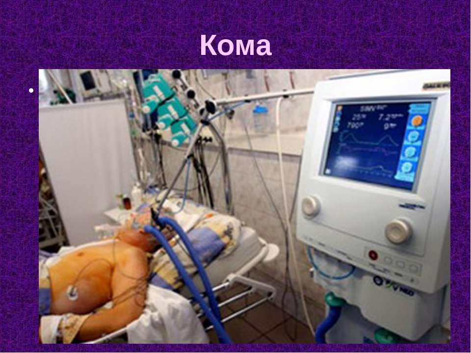 Кома Кома (коматозное состояние) (от греч. κῶμα— глубокий сон)— остро разви...