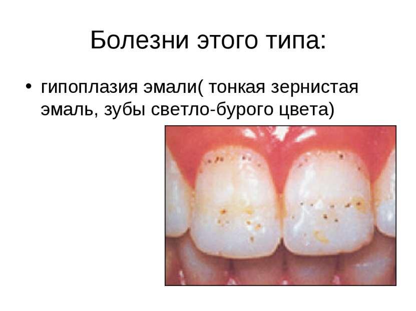 Болезни этого типа: гипоплазия эмали( тонкая зернистая эмаль, зубы светло-бур...