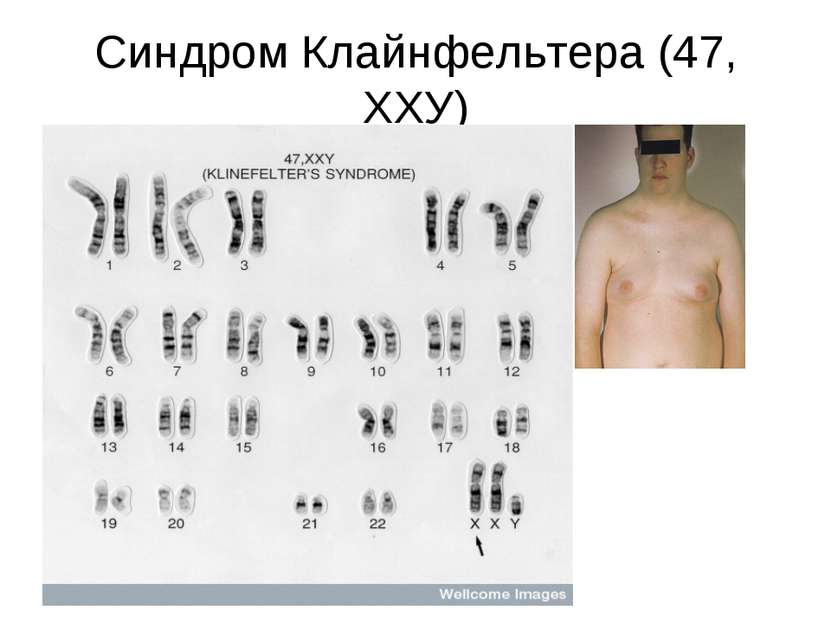 Синдром Клайнфельтера (47, ХХУ)