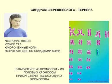 СИНДРОМ ШЕРЕШЕВСКОГО - ТЕРНЕРА В КАРИОТИПЕ 45 ХРОМОСОМ – ИЗ ПОЛОВЫХ ХРОМОСОМ ...