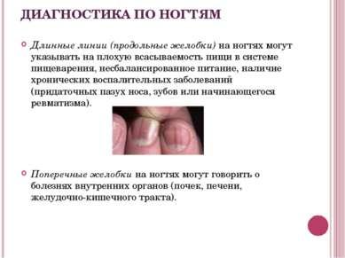 ДИАГНОСТИКА ПО НОГТЯМ Длинные линии (продольные желобки) на ногтях могут указ...